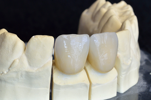 dental crowns in plainview